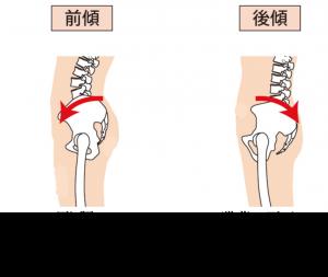 腰の反り方タイプ