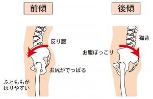 骨盤の前傾